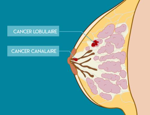 Cancer du sein Protégez-vous!